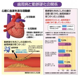 歯周病と動脈硬化の関係