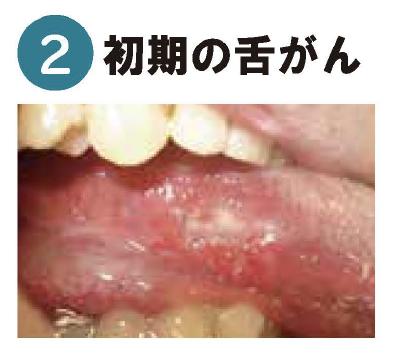 初期の舌がん